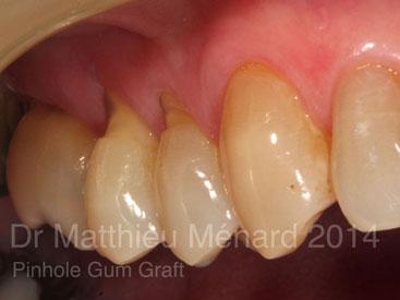 Pinhole-Gum-Graft-greffe-de-genvcive-1