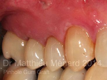 Pinhole-Gum-Graft-greffe-de-genvcive-2
