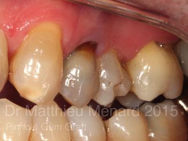 Pinhole-Gum-Graft-greffe-de-genvcive-b1