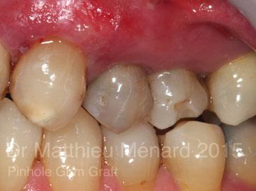 Pinhole-Gum-Graft-greffe-de-genvcive-b2