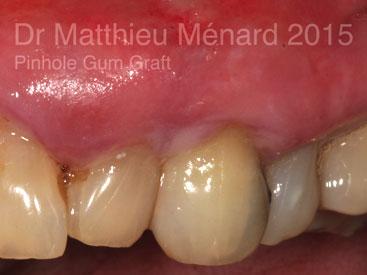 Pinhole-Gum-Graft-greffe-de-genvcive-c2