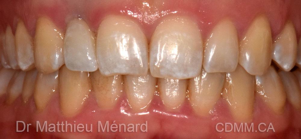 invisalign-et-implant-apres