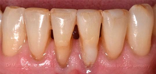 fermeture espace entre les dents après