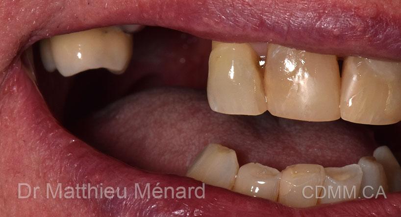 1-cas-implant-apres