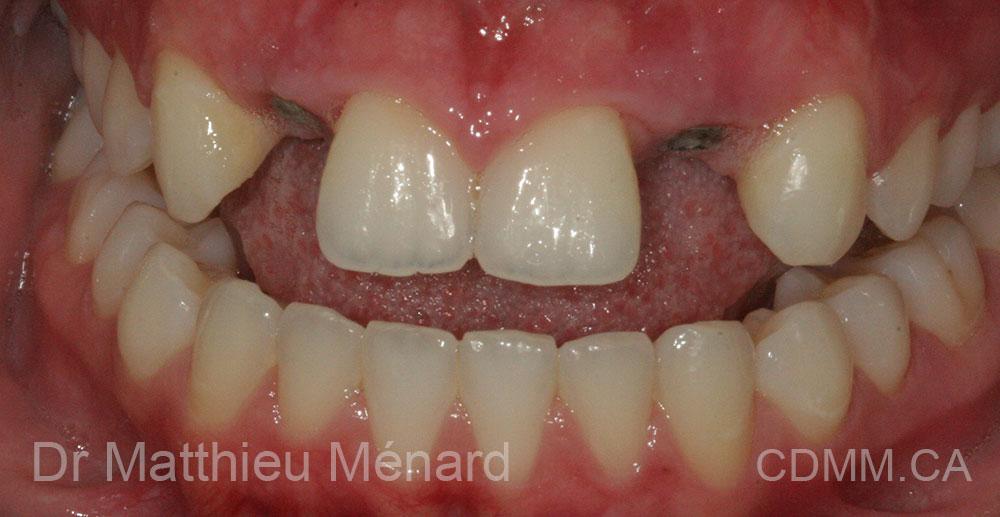 2-implant-12-22-apres