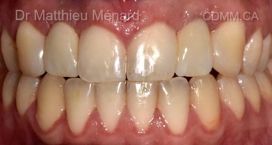 81-implants-dentaire-apres