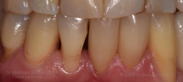 a-space-between-teeth black triangle-1