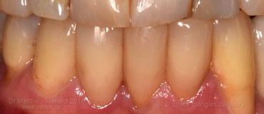 a-space-between-teeth black triangle-3