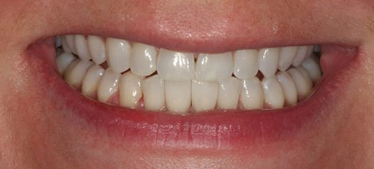 black-triangle-after space-between-teeth
