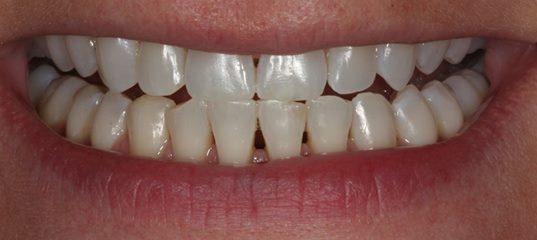black-triangle-before space-between-teeth