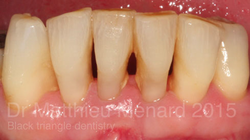 black-triangle-dentistry-apres-b