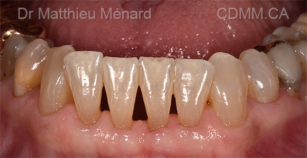 Bioclear-espace-entre-les-dents-triangle-noir-après