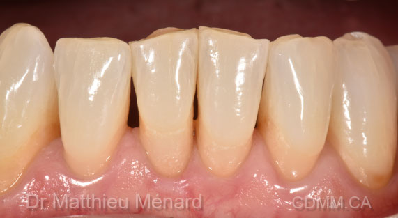 black-triangle-dentistery-before