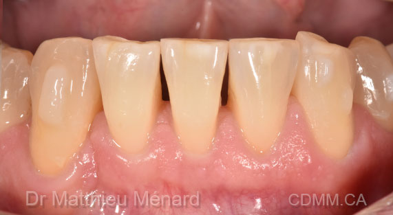 03-black-triangle-dentistery-after